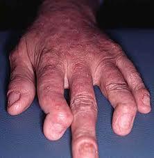 Informacion Sobre La Artritis Psoriásica
