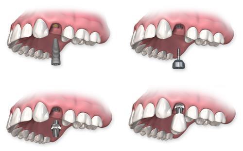 Cấy ghép Implant Nha Khoa phục hình răng mất -2