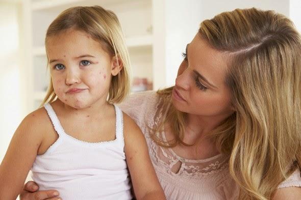 Obat Cacar Air Pada Anak Herbal
