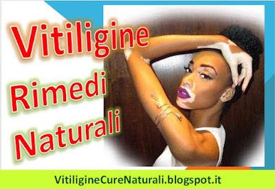 vitiligine-rimedi-naturali-casalinghi-per-curare-macchie-bianche-sulla-pelle