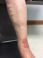 venous stasis dermatitis on leg