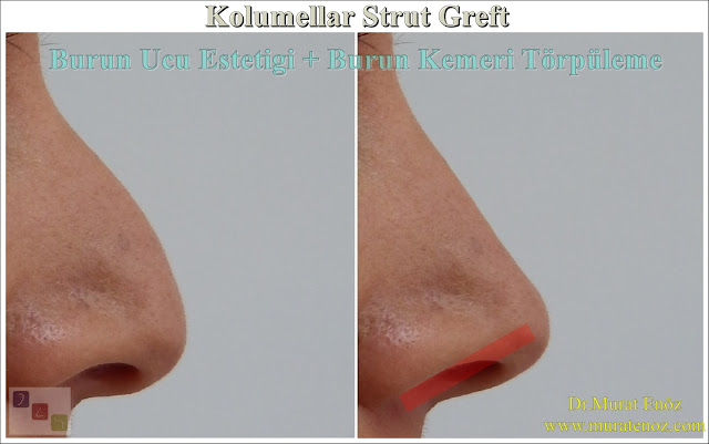 Nose tip stiffness after nasal tip surgery - Why nose tip become harden after nose tip plasty? - Nose tip sagging - Droopy nose tip- Nose tip sag when smiling - Nose tip drop - What is the columellar strut graft? - How does columellar strut grafts work? - How is the columellar strut graft placed? - Nose tip aesthetics - Nose tip lifting