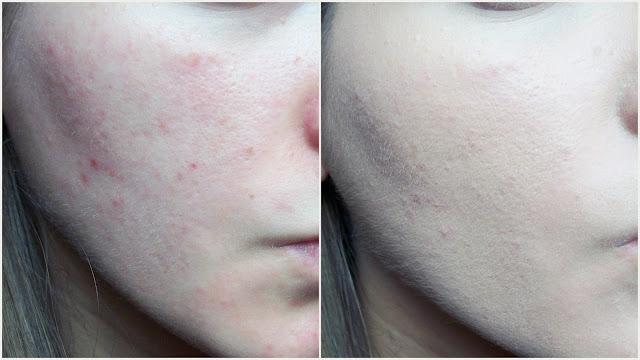 efekt na twarzy