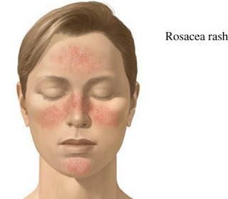 acné cause