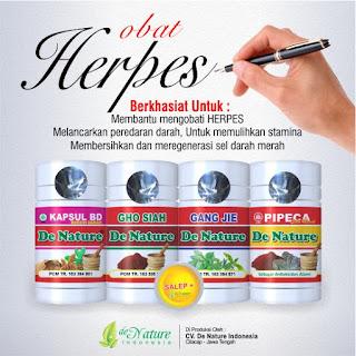 Mengobati Penyakit Herpes Scara Alami Manjur
