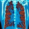Google mostra como o aprendizado de máquina pode detectar câncer de pulmão