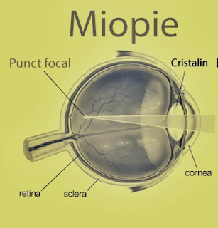 noutati in sanatate lentile noi miopie la copii