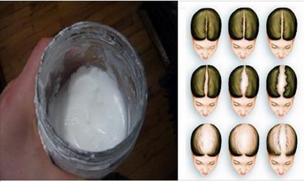 Baking Soda Shampoo That Will Save Your Hair