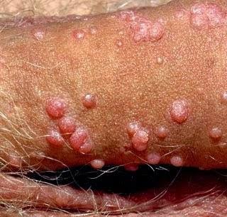 Penyakit Kutil Di Batang Penis