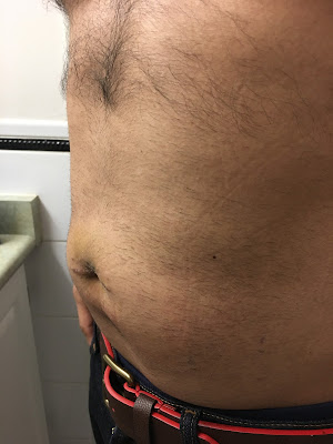 Two weeks after hernia repair at Shouldice  - left angle
