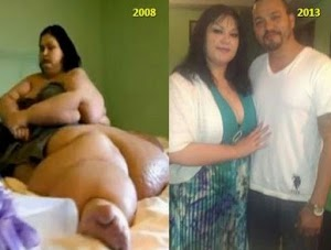 Do You Remember The Story About the Woman Who Weighed 1000 POUNDS? You'll Be Surprised How She Looks NOW!