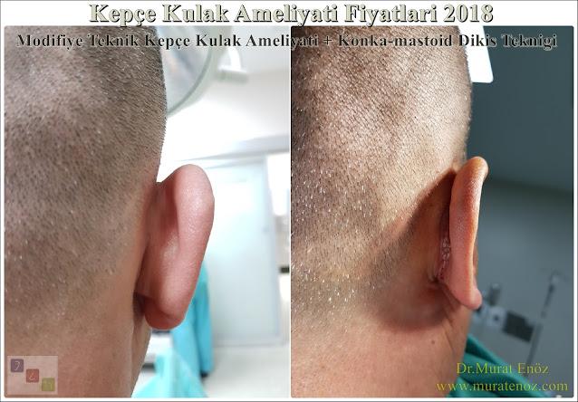 Kepçe Kulak Ameliyatı Fiyatları 2020