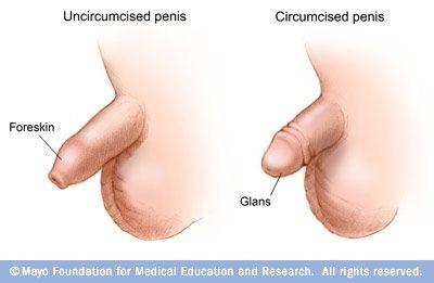 en uomskåret penis