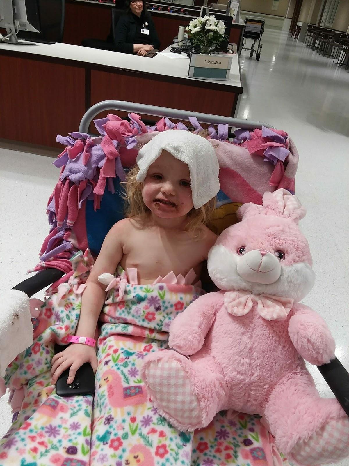 Mãe alerta,  que a filha de 3 anos sofreu reação alérgica severa causada por Kit de maquiagem de brinquedo
