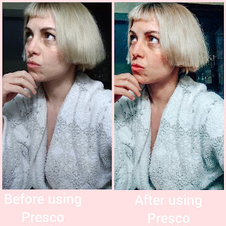 Before And After Presco