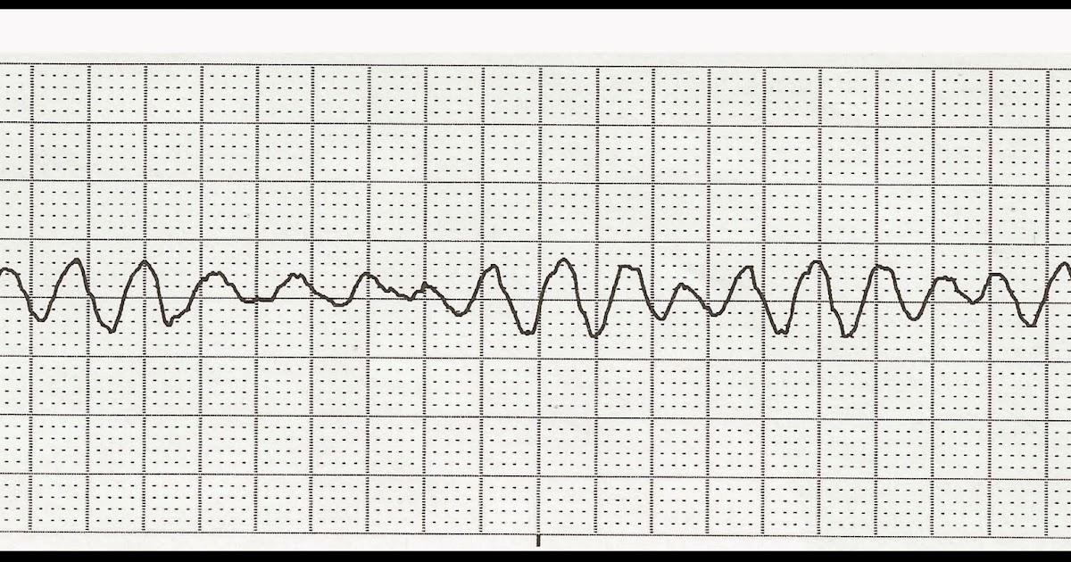 Float Nurse: Practice EKG Strips 422