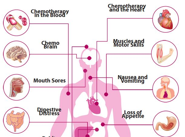 side effects and complications of chemotherapy Cdc - blogs - the topic is cancer – chemotherapy's most serious side effect  i'm often asked about the side effects of chemotherapy usually,.