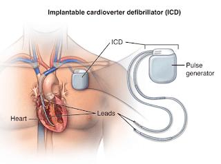 Hacking alat Pacu jantung (ICD)