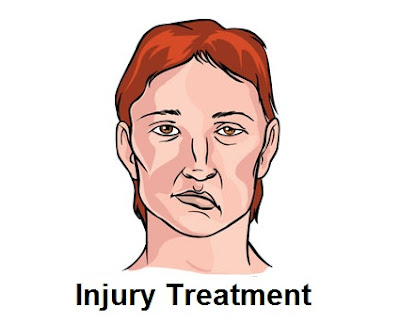 A trauma is the medical term for an accident Trauma And Injury Recovery