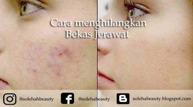 Solehah Beauty Cara Menghilangkan Bekas Jerawat