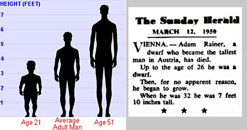 Born A Dwarf And Died A Giant The Tragic Story Of Adam Rainer