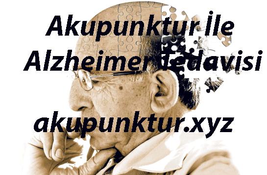 Akupunktur Alzheimer