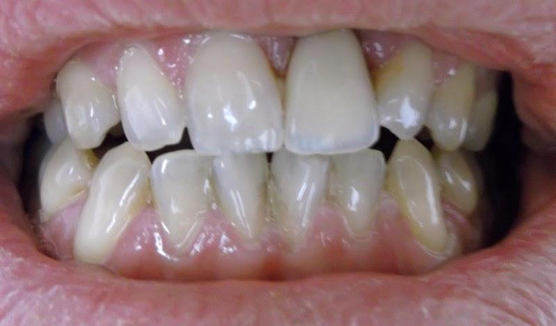 appareil sur implants dentaires