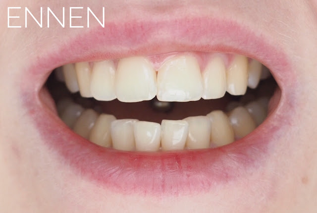 Zental hampaidenvalkaisu