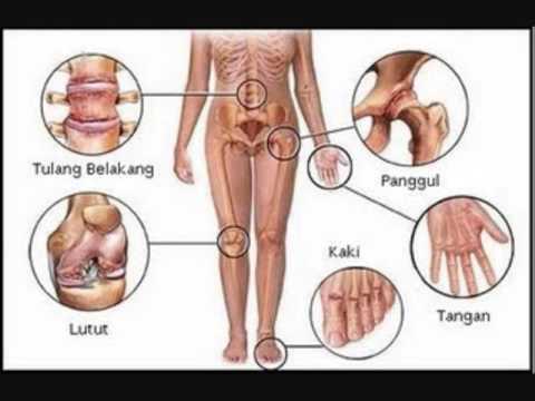 Pengobatan Rematik Tradisional, Cara Menyembuhkan Penyakit Rematik Secara Alami 100% Efektif Dan Cepat