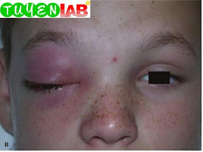 Same patient, frontal view demonstrating hypoglobus