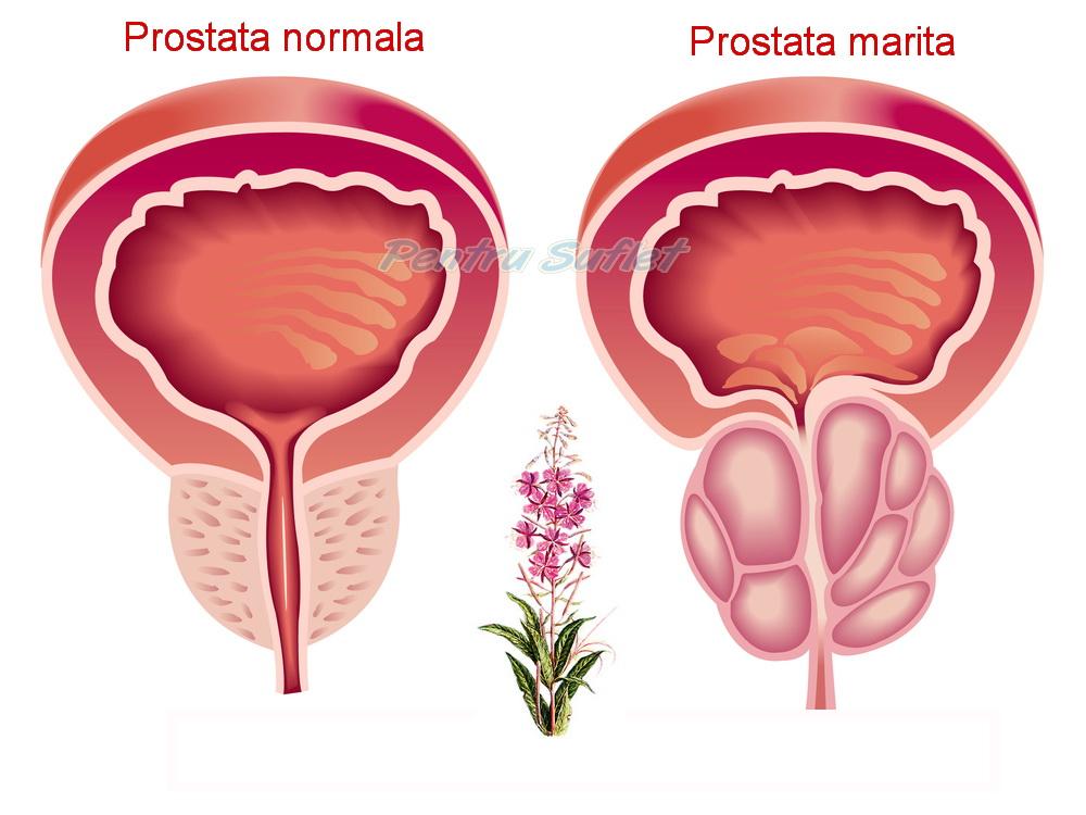 Prostaffect - Soluție naturală și eficientă pentru tratamentul prostatitei