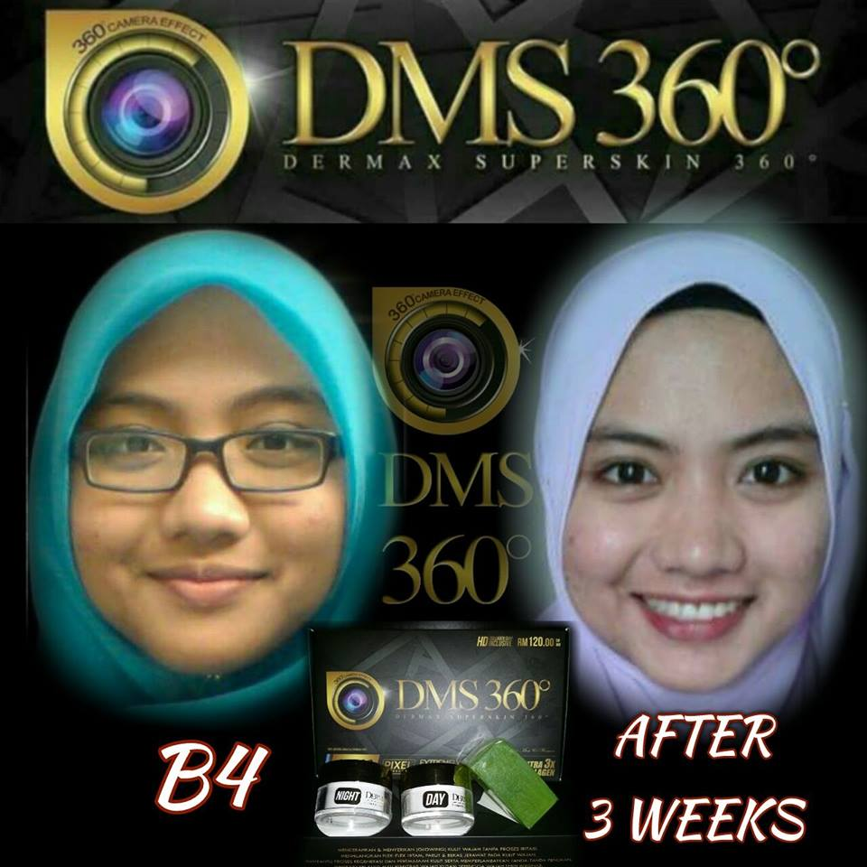 Sugeh cosmetic dms 360 dermax superskin 360 cantik for Tji 360 price