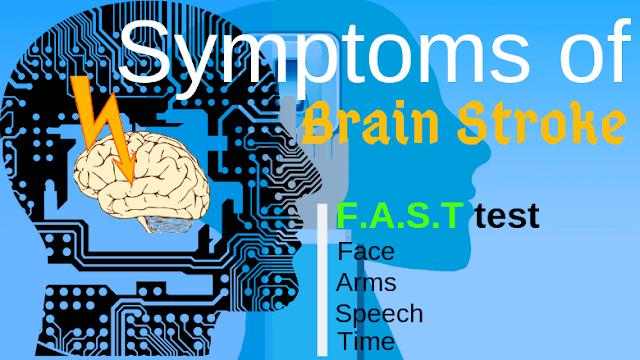 Symptoms of a Brain Stroke