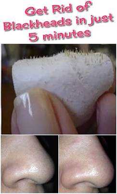 Get rid of Blackheads in just 5 minutes