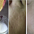 Natural Home Treatment That Can Defeat Botox for Tightening and Clears Pore Skin