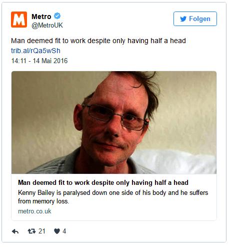 Mann Ohne Gehirn