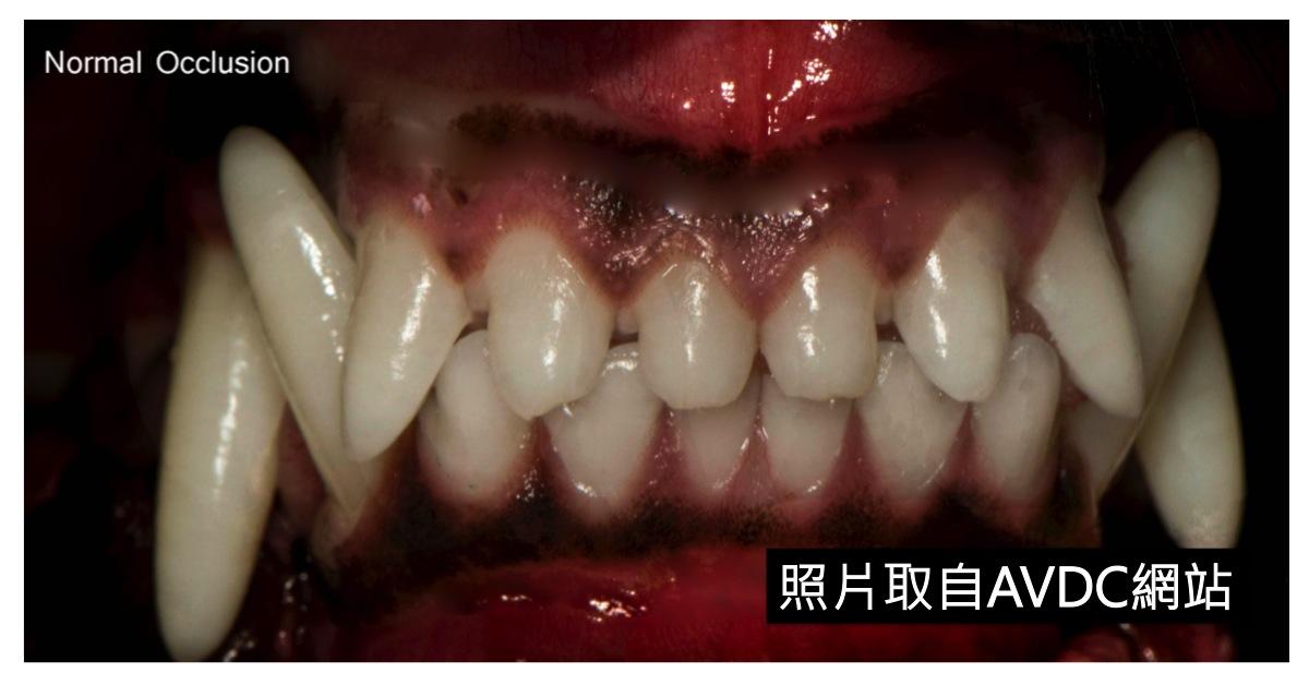 蔡依津 獸醫師: 幼年狗貓常見齒科問題:咬合不正+齒列不整(上)