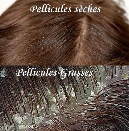 meilleure coiffure tendance pellicules cheveux recette naturelle contre les pellicules. Black Bedroom Furniture Sets. Home Design Ideas