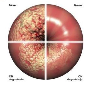 tipos de lesiones en el cuello del utero