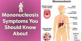 Mononucleosis, an infectious disease that can affect various parts of the body mono rash pictures