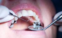 La UE prohíbe el mercurio dental en niños y mujeres embarazadas o en periodo de lactancia.