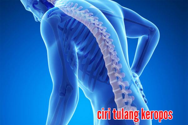 Obat Penyakit Tradisional Tulang Keropos