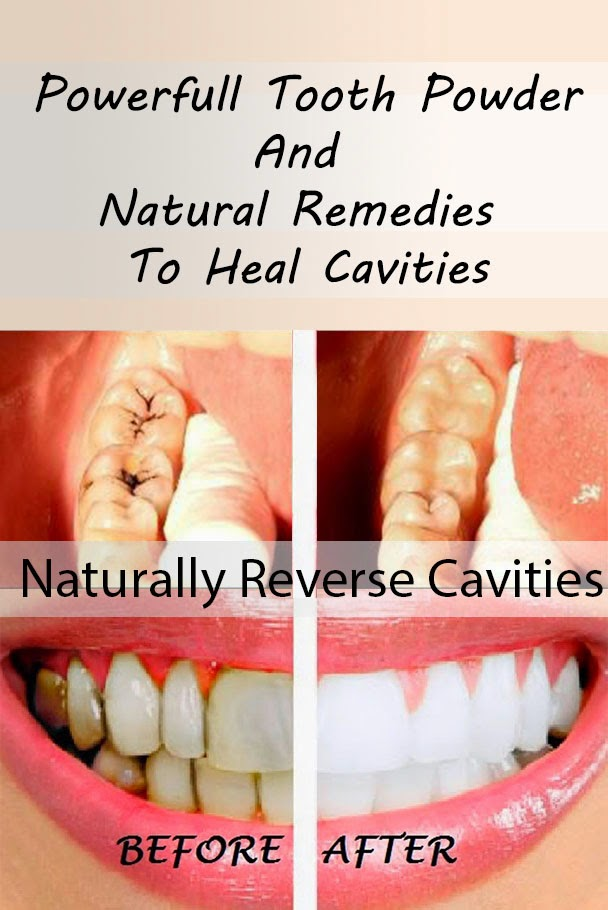 No More Cavities Natural Cure