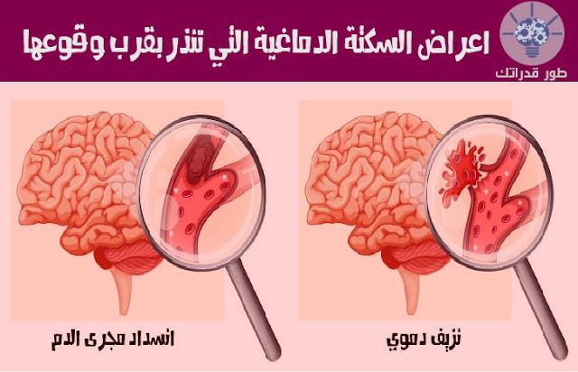 اعراض السكتة الدماغية التي تنذر بقرب وقوعها