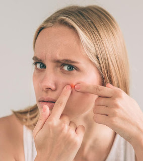 Acne Causes And Tips - Acne Symptoms - Acne Diagnosis 2019