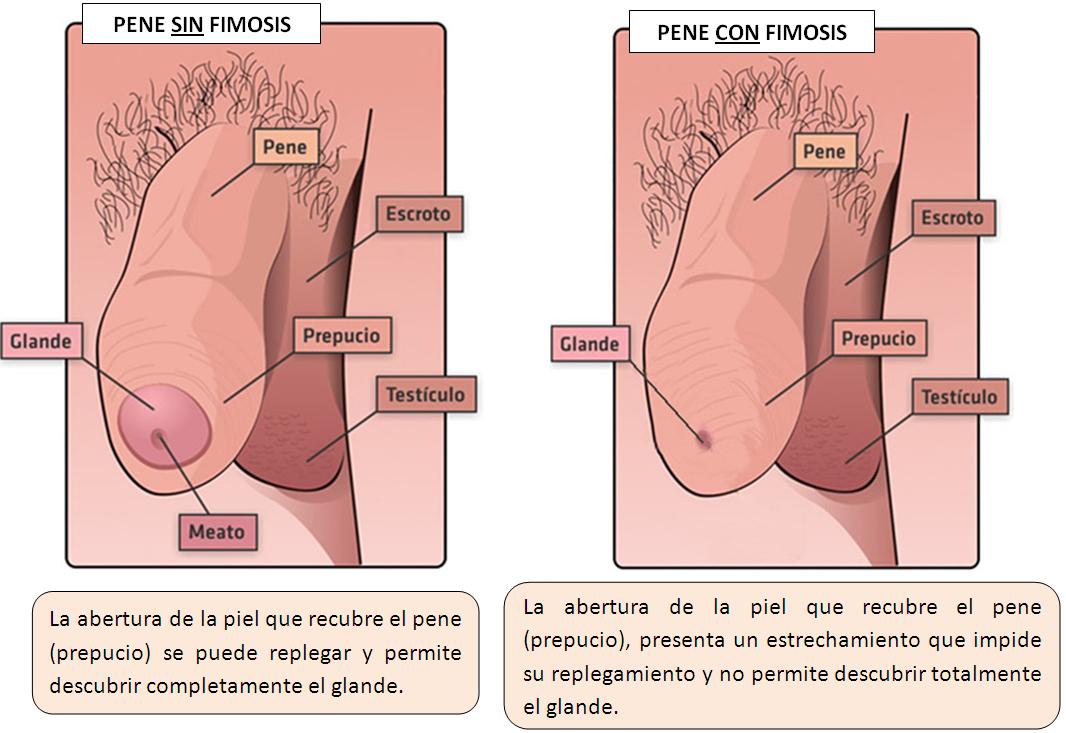 glande descubierto en fotografía de erección