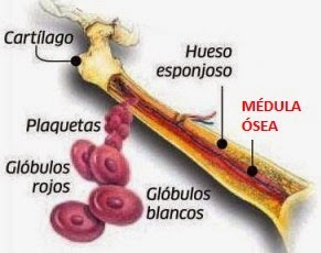 Hemoglobinuria paroxistica nocturna