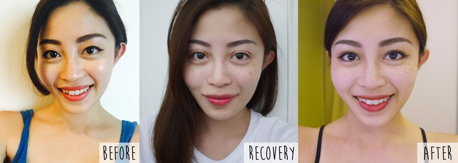 Non-incisional Double Eyelid Surgery in Singapore