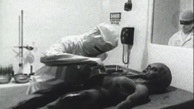 Real-Footage-of-an-Autopsy-on-a-Roswell-...xists3.jpg