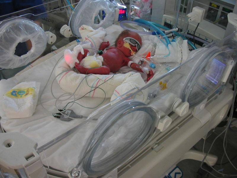 Útero artificial pode revolucionar a forma como tratamos bebês prematuros
